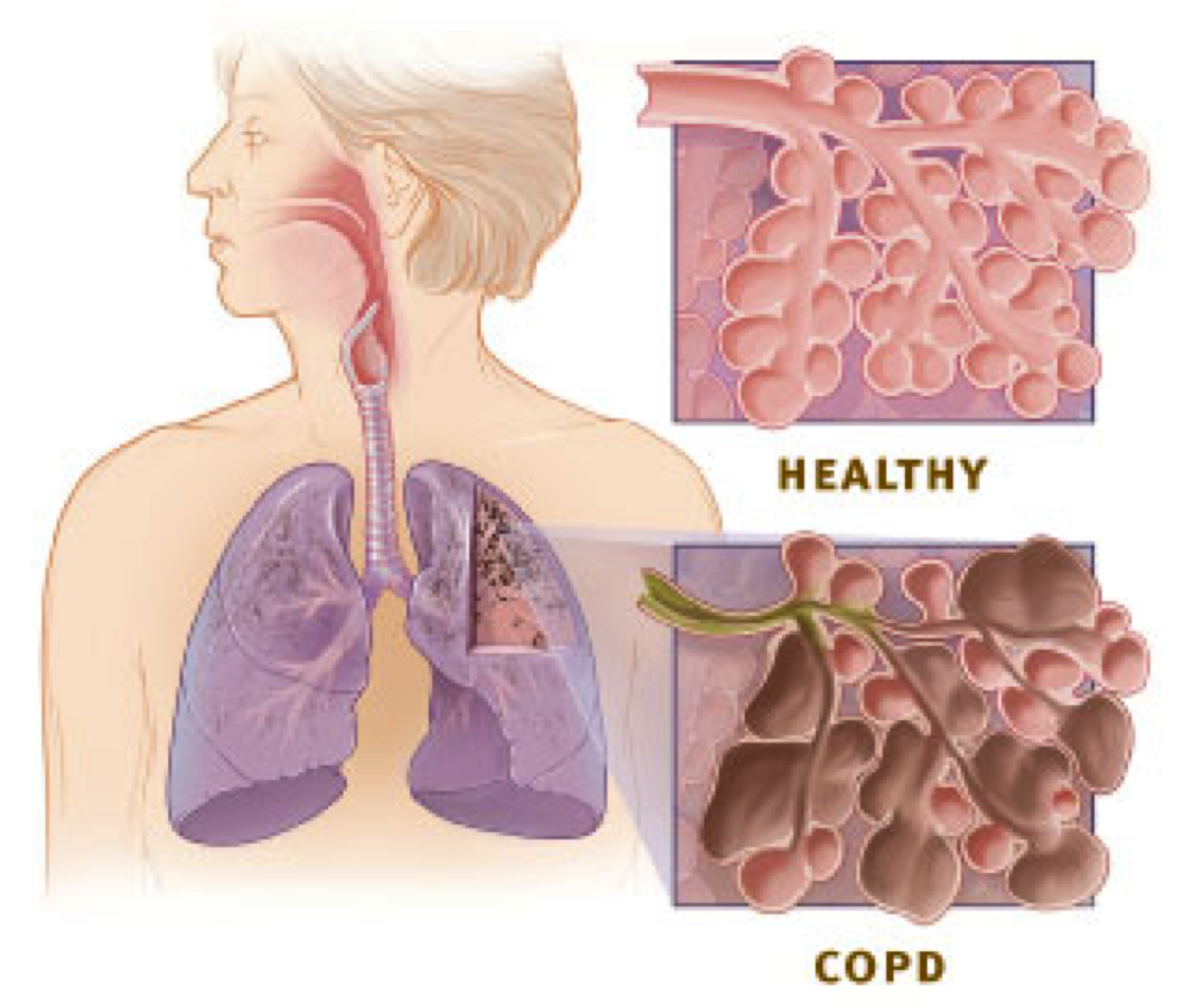 Inhaled Steroids May Slow copd
